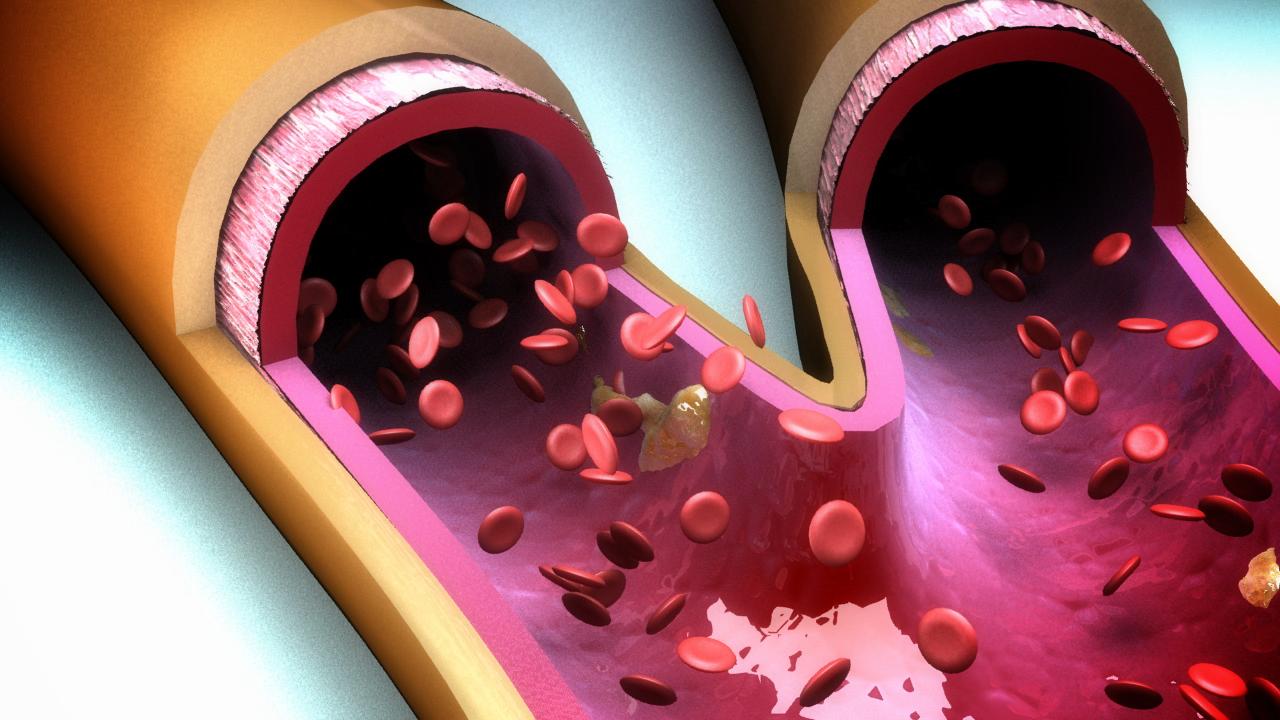 Cholesterol Control